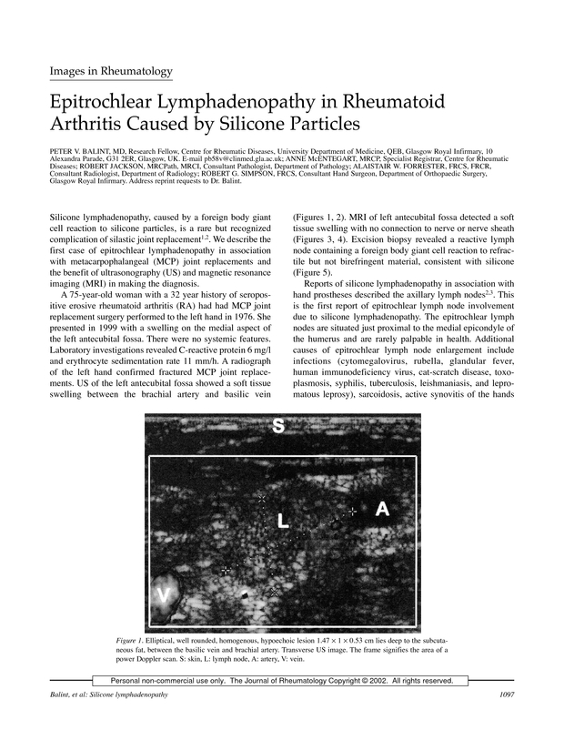 Epitrochlear Lymphadenopathy In Rheumatoid Arthritis Caused By