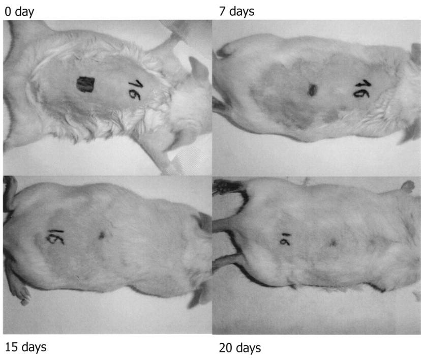 Effect of Blockade of Tumor Necrosis Factor-α with Etanercept on
