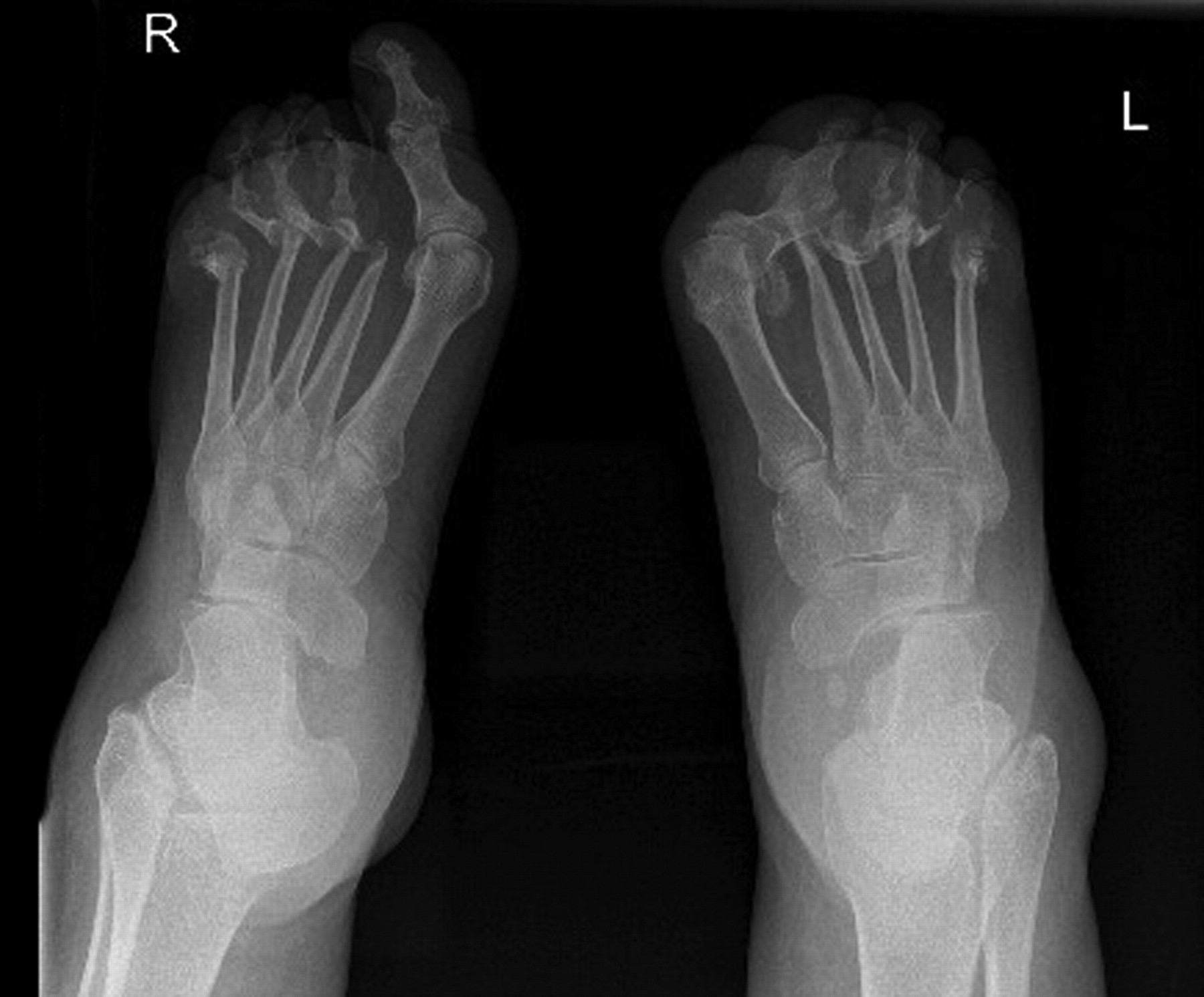 Artrita psoriazica - Simptome, diagnostic si tratament