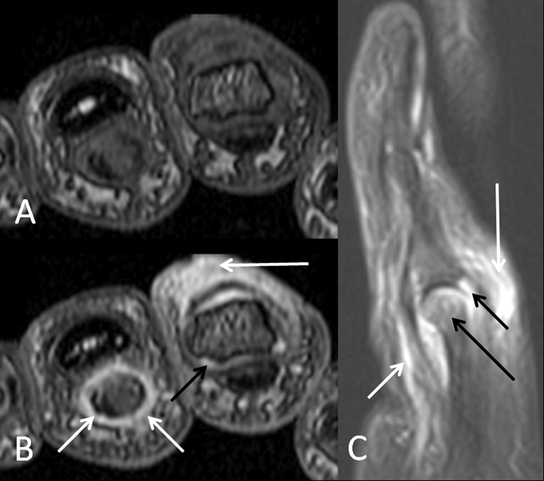 Magnetic Resonance Imaging in Psoriatic Arthritis — Update on ...