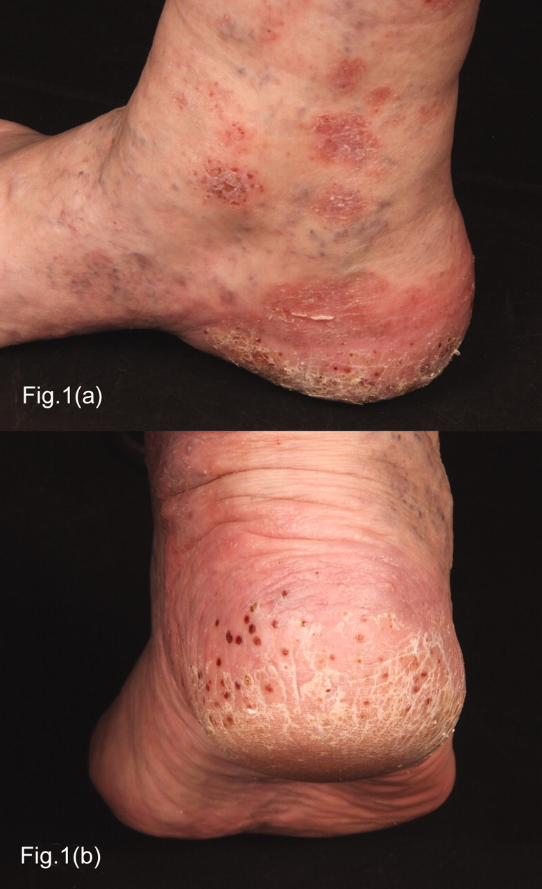 Atypical Psoriasis Following Rituximab for Rheumatoid ...