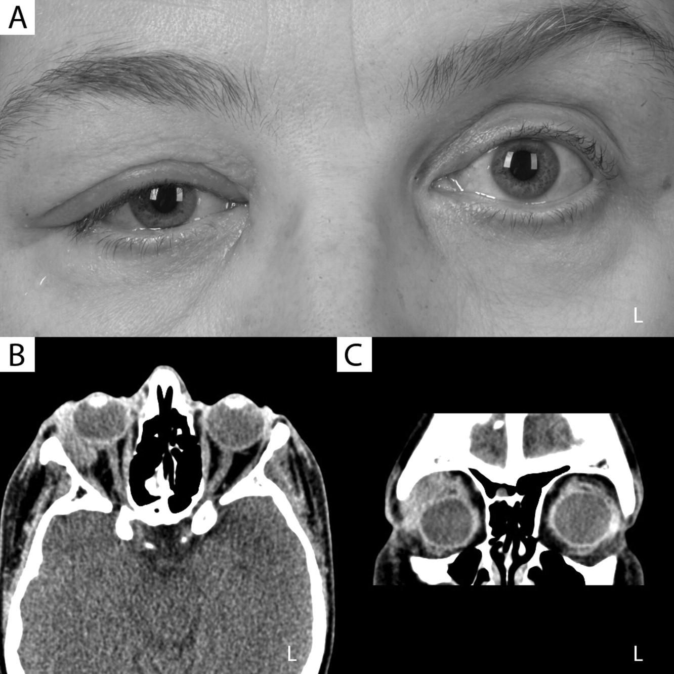 Sixth image of Orbital Pseudotumor Eyerounds Org with Idiopathic Orbital Inflammation Successfully Treated Using ...