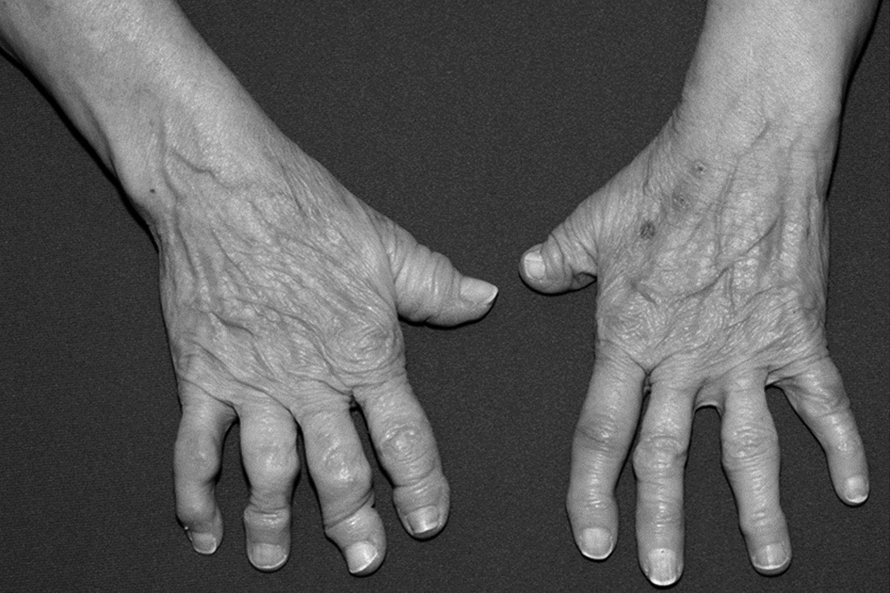 Idiopathic Arthritis Mutilans