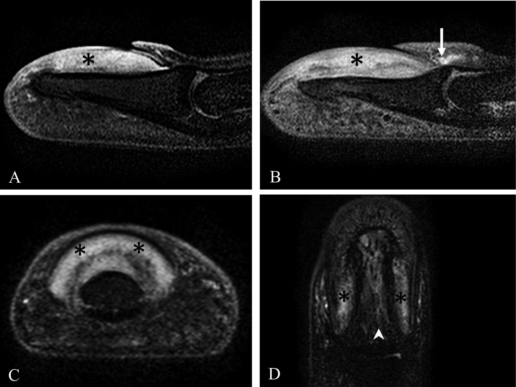 The Microanatomic Basis of Finger Clubbing — A High-resolution ...