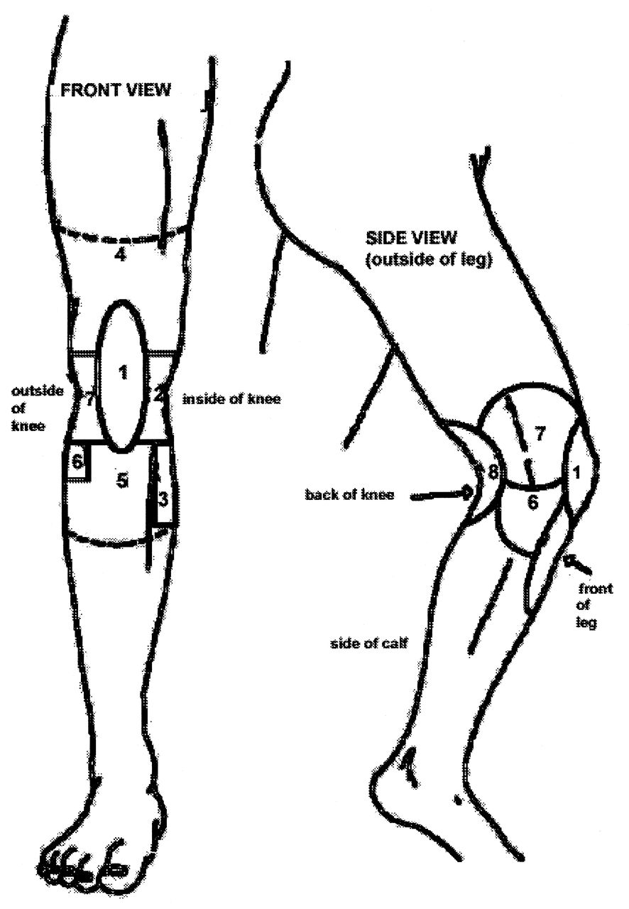 Knee pain diagnosis test - Download Figure