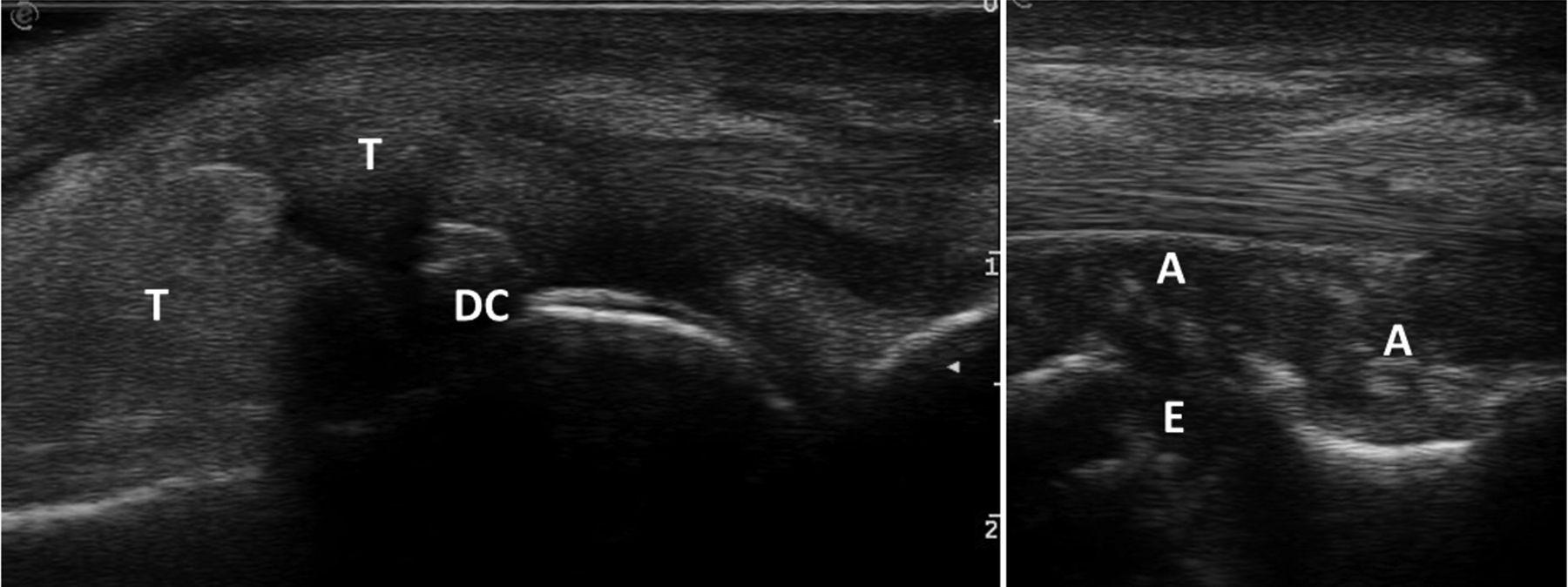 atlas of ultrasound measurements скачать