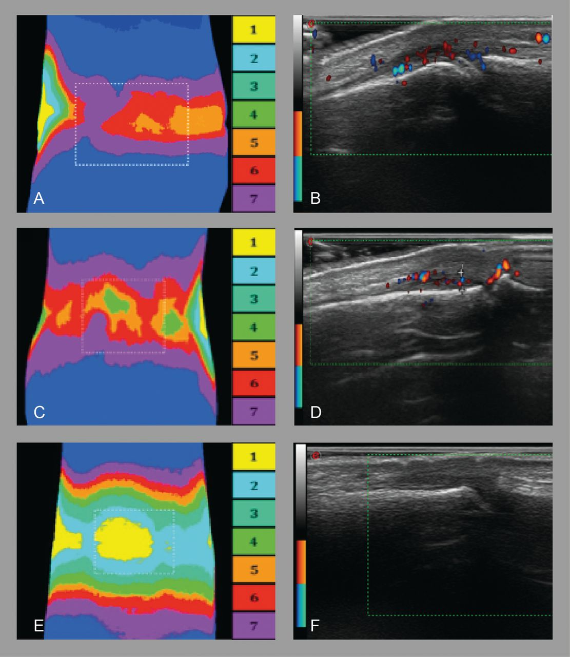Figure 2 Comparison Of Photo Optical Imaging With Musculoskeletal Ultrasound And Clinical Examination In The Assessment Of Inflammatory Activity In Proximal Interphalangeal Joints In Rheumatoid Arthritis And Osteoarthritis The Journal Of Rheumatology