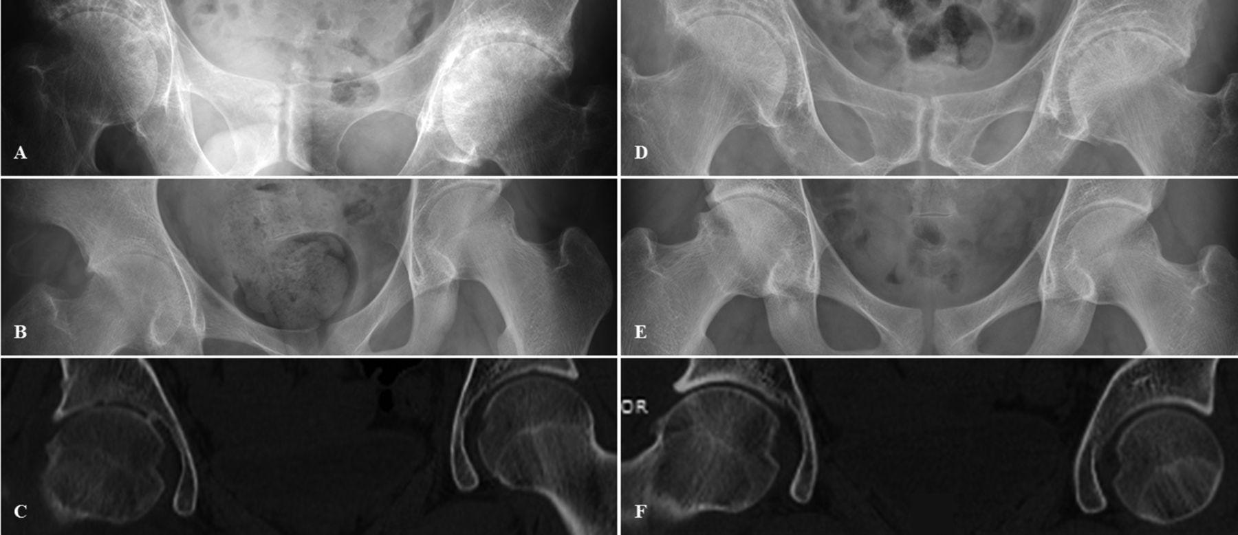 plaquenil retinopathy on oct
