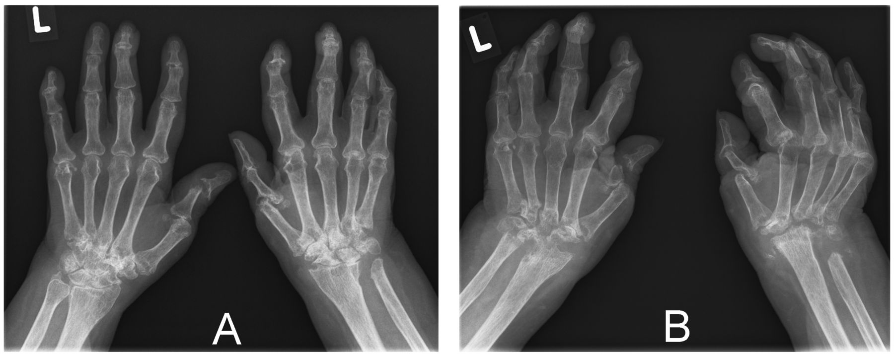 Missing Wrists In A Patient With Rheumatoid Arthritis A Matter Of Compliance The Journal Of Rheumatology