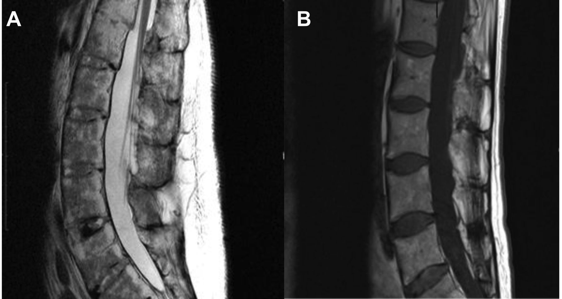 Cauda Equina Syndrome In Ankylosing Spondylitis Challenges In Diagnosis Management And Pathogenesis The Journal Of Rheumatology The pia mater tapers and continues down as the filum terminale at the end of the conus medullaris.1. cauda equina syndrome in ankylosing